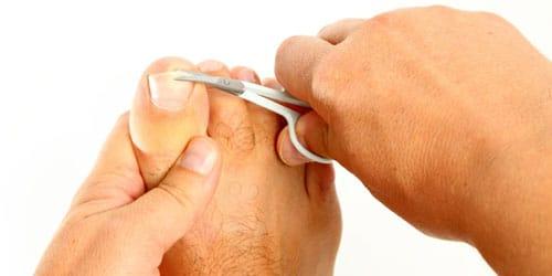 обрезать ноготь