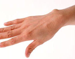 К чему снится оторванная рука?