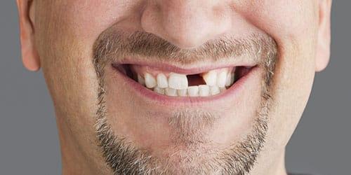 видеть во сне выбитые зубы