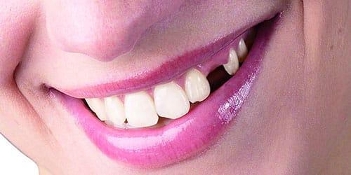 потерять зуб