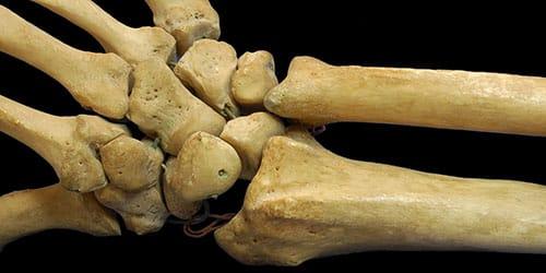 Сонник кости человека к чему снится кости человека во сне