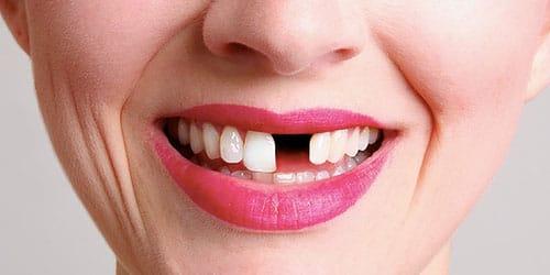 к чему снятся плохие зубы