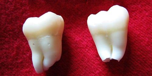 к чему снится выплевывать зубы