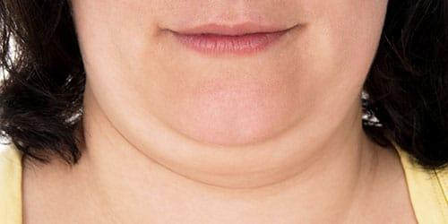 толстое лицо