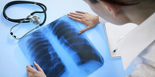 к чему снится болезнь легких