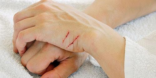 к чему снится что поцарапала кошка до крови