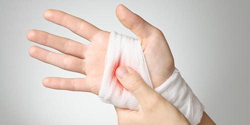 видеть во сне свою раненую руку