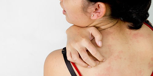 Болячки на теле