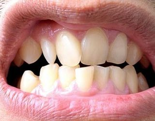 Кривые зубы