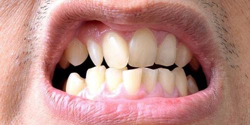 видеть во сне свои кривые зубы