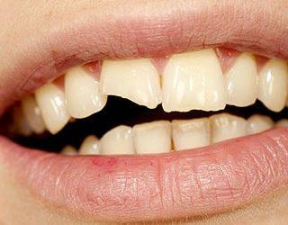 Выпал кусок зуба