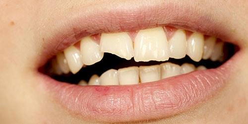 к чему снится что выпал кусок зуба