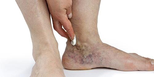 к чему снятся вены на ногах