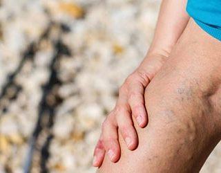 К чему снятся вены на ногах?