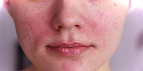 к чему снится кожное заболевание