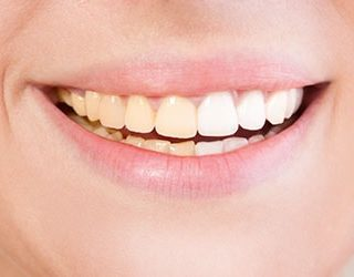К чему снятся грязные зубы?