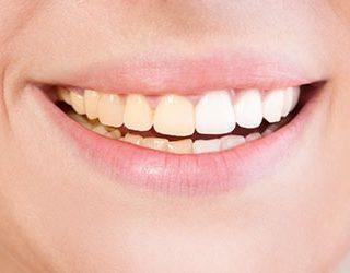Грязные зубы