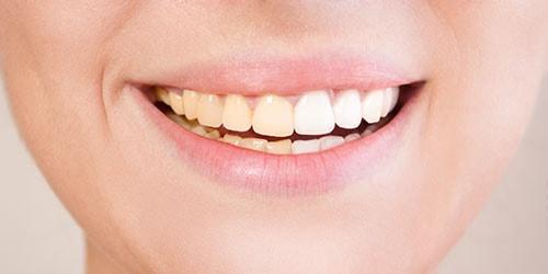 видеть во сне свои грязные зубы