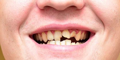 к чему снится что крошатся передние зубы