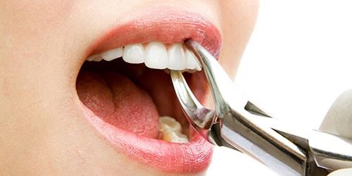удалять зуб