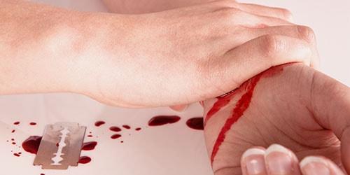 Видеть во сне порезанную свою руку 71