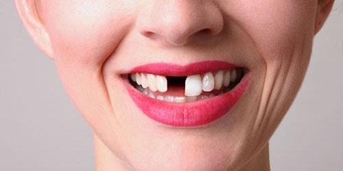 выпал передний зуб