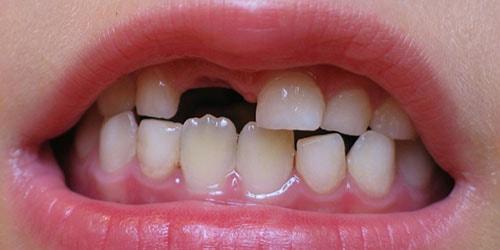 к чему снится что выпал молочный зуб у ребенка
