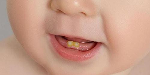 да чаго сняцца сапсаваныя зубы ў дзіцяці