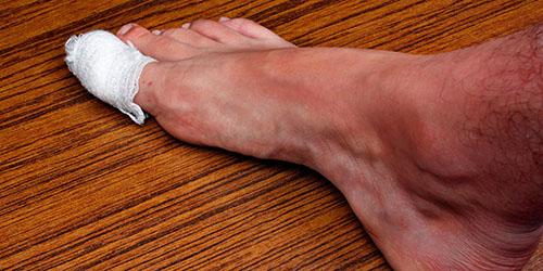 к чему снится порезать палец на ноге