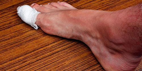 травма пальца ноги