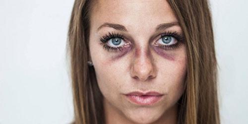 синяки на лице