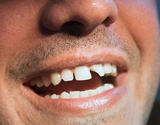 Ломаются зубы