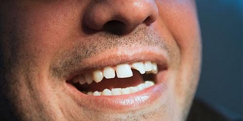 отколотый зуб