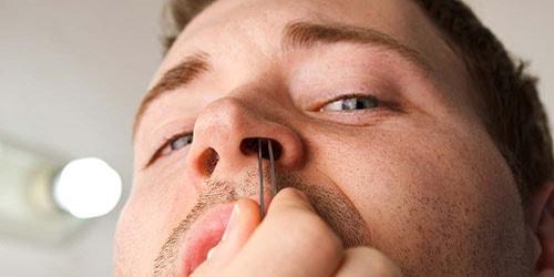 удаление растительности в носу