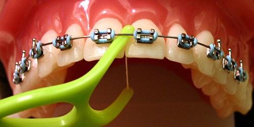 скобы на зубах