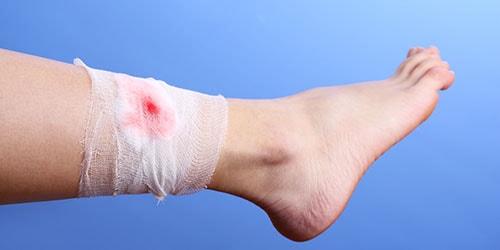 рана на ноге