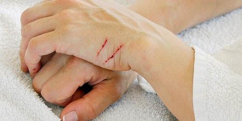 царапины на руке