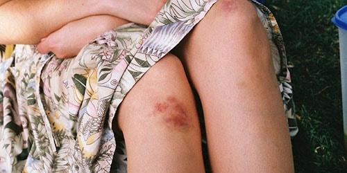 колени в синяках