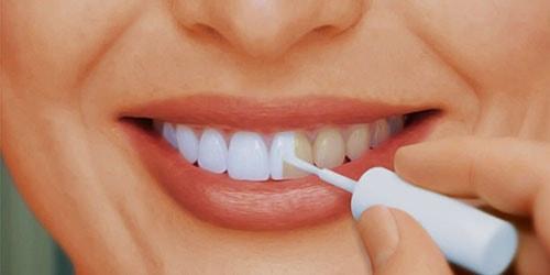 Как бороться с желтыми зубами?