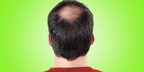 лысая макушка головы