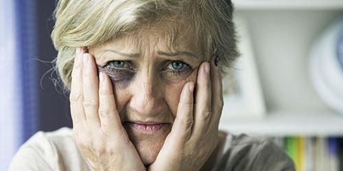 избитая женщина
