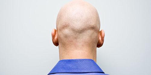 лысая голова