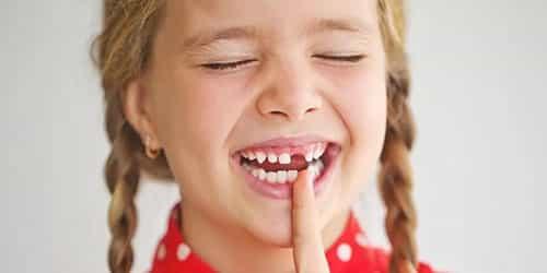 К чему снится что выпал зуб без крови?