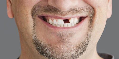 У мужчины выпал зуб